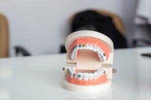 Co ortodonta robi na wizytach kontrolnych?